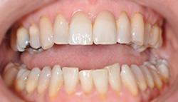 Sorriso dopo - con faccette dentali