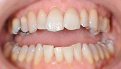 Sorriso prima - senza faccette dentali